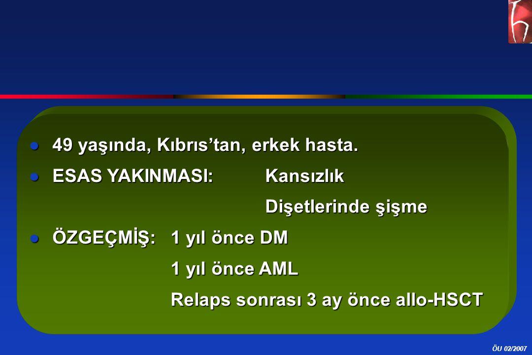 ÖU 02/2007 ●49 yaşında, Kıbrıs'tan, erkek hasta. ●ESAS YAKINMASI: Kansızlık Dişetlerinde şişme ●ÖZGEÇMİŞ: 1 yıl önce DM 1 yıl önce AML Relaps sonrası