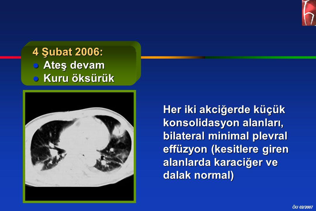 ÖU 02/2007 4 Şubat 2006: ●Ateş devam ●Kuru öksürük Her iki akciğerde küçük konsolidasyon alanları, bilateral minimal plevral effüzyon (kesitlere giren alanlarda karaciğer ve dalak normal)