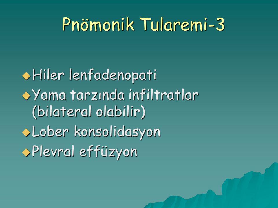 Pnömonik Tularemi-3  Hiler lenfadenopati  Yama tarzında infiltratlar (bilateral olabilir)  Lober konsolidasyon  Plevral effüzyon