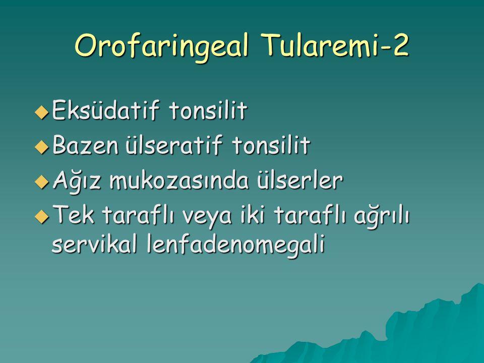  Eksüdatif tonsilit  Bazen ülseratif tonsilit  Ağız mukozasında ülserler  Tek taraflı veya iki taraflı ağrılı servikal lenfadenomegali Orofaringea