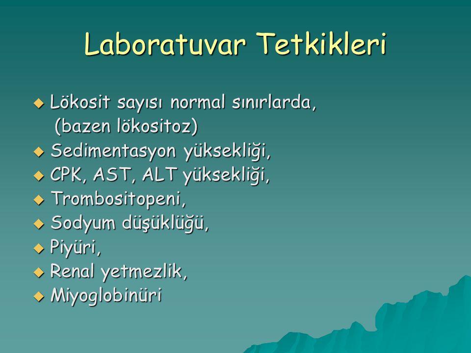 Laboratuvar Tetkikleri  Lökosit sayısı normal sınırlarda, (bazen lökositoz) (bazen lökositoz)  Sedimentasyon yüksekliği,  CPK, AST, ALT yüksekliği,