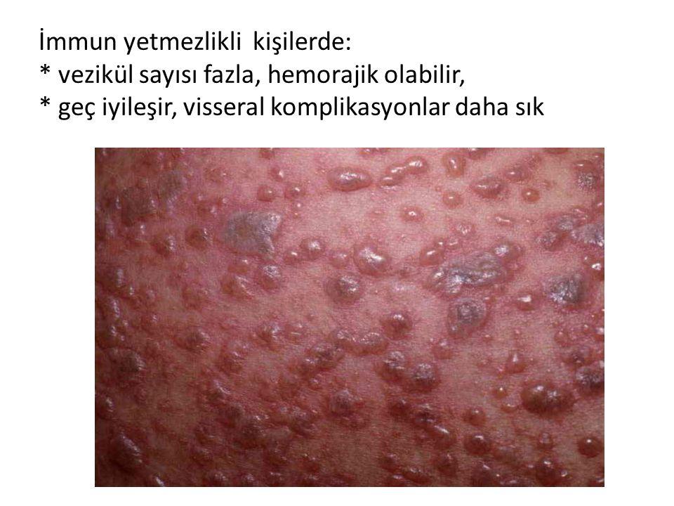 İmmun yetmezlikli kişilerde: * vezikül sayısı fazla, hemorajik olabilir, * geç iyileşir, visseral komplikasyonlar daha sık