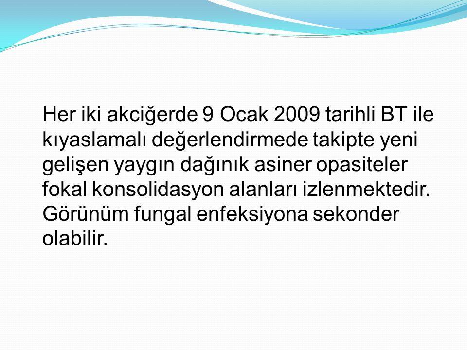Her iki akciğerde 9 Ocak 2009 tarihli BT ile kıyaslamalı değerlendirmede takipte yeni gelişen yaygın dağınık asiner opasiteler fokal konsolidasyon ala