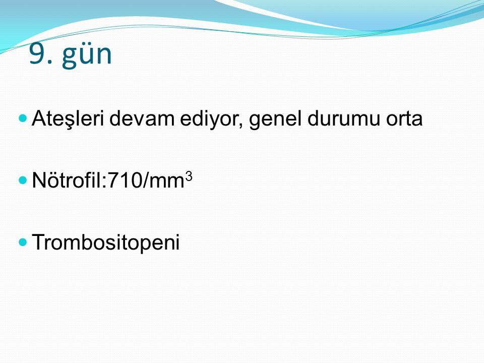 9. gün Ateşleri devam ediyor, genel durumu orta Nötrofil:710/mm 3 Trombositopeni