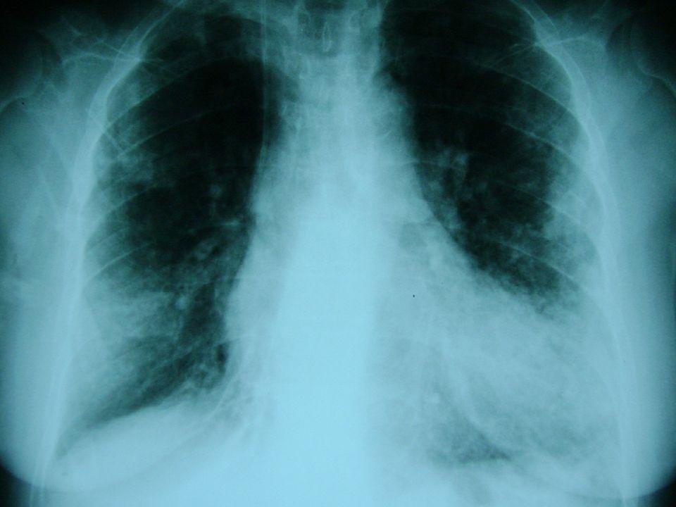 Akciğer grafisini nasıl yorumlarsınız?