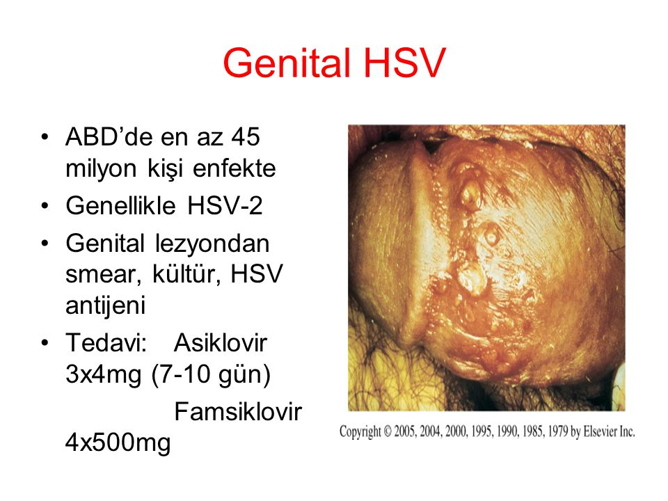 Genital HSV ABD'de en az 45 milyon kişi enfekte Genellikle HSV-2 Genital lezyondan smear, kültür, HSV antijeni Tedavi:Asiklovir 3x4mg (7-10 gün) Famsi