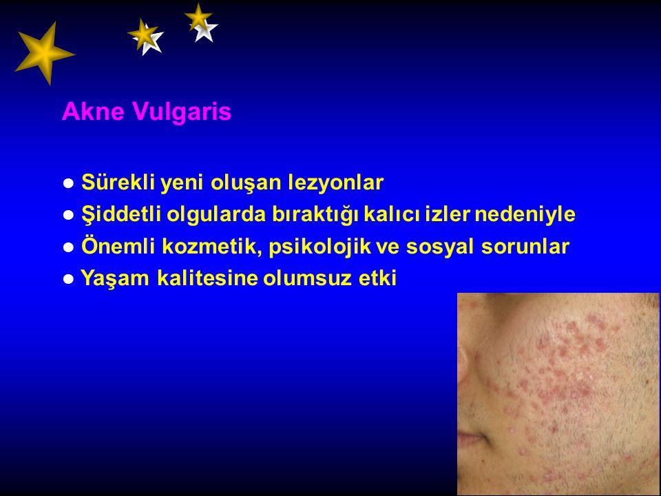 Akne Vulgaris Sürekli yeni oluşan lezyonlar Şiddetli olgularda bıraktığı kalıcı izler nedeniyle Önemli kozmetik, psikolojik ve sosyal sorunlar Yaşam k