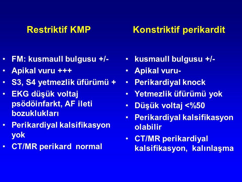 Restriktif KMP Konstriktif perikardit FM: kusmaull bulgusu +/- Apikal vuru +++ S3, S4 yetmezlik üfürümü + EKG düşük voltaj psödöinfarkt, AF ileti bozu
