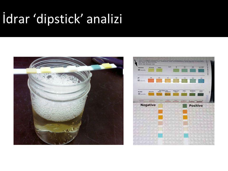 İdrar 'dipstick' analizi