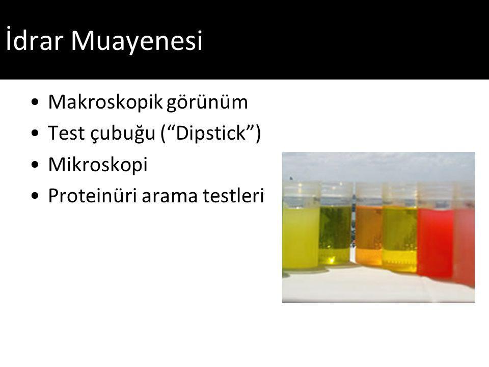 Proteinüri Saptama Yöntemleri İdrar Test Çubukları (Dipstick, Kağıt-Çubuk) Tarama amaçlı kullanılabilir Yeterince hassas değil.