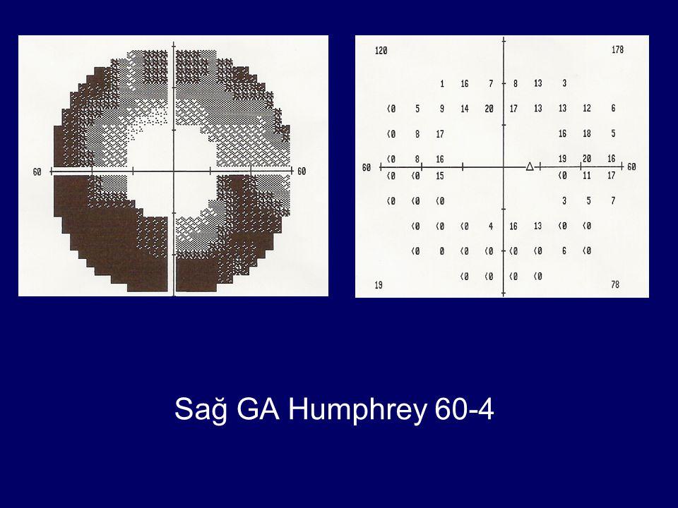Sağ GA Humphrey 60-4