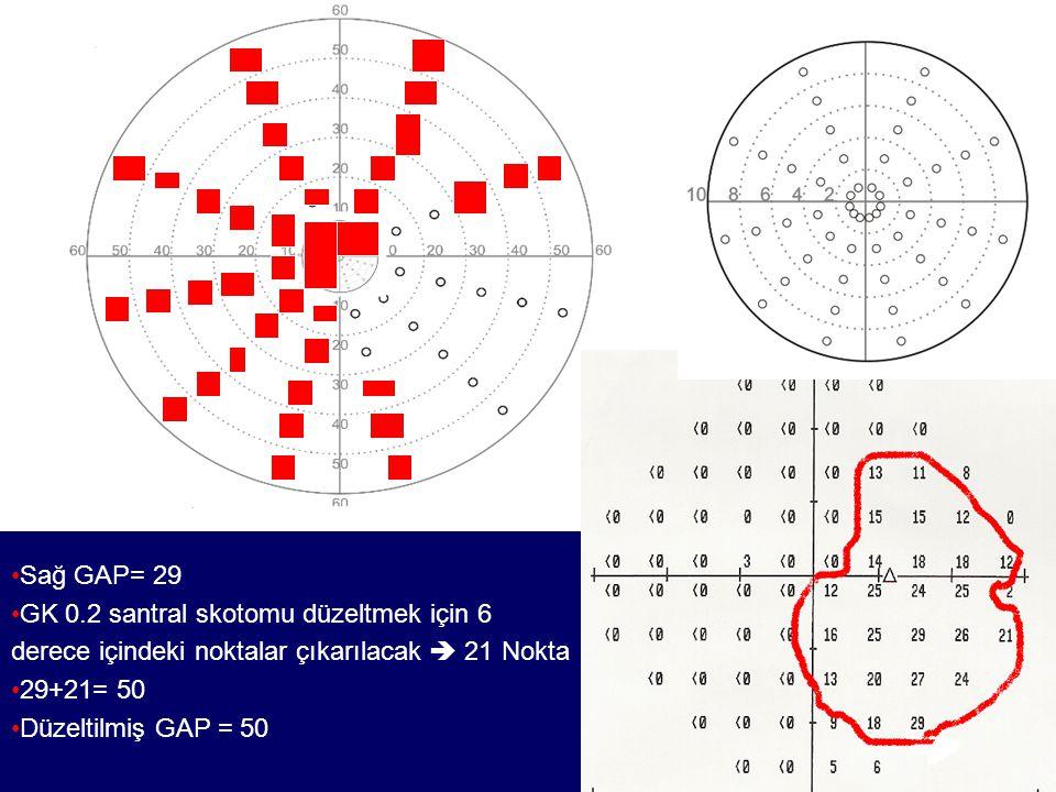 Sağ GAP= 29 GK 0.2 santral skotomu düzeltmek için 6 derece içindeki noktalar çıkarılacak  21 Nokta 29+21= 50 Düzeltilmiş GAP = 50