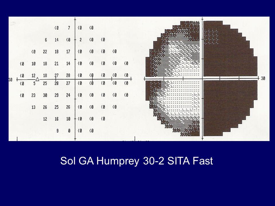 Sol GA Humprey 30-2 SITA Fast