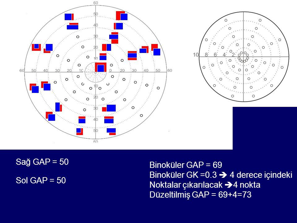 Sağ GAP = 50 Sol GAP = 50 Binoküler GAP = 69 Binoküler GK =0.3  4 derece içindeki Noktalar çıkarılacak  4 nokta Düzeltilmiş GAP = 69+4=73