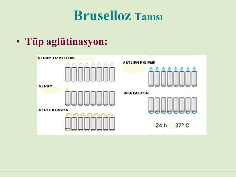 Bruselloz Tanısı Tüp aglütinasyon: