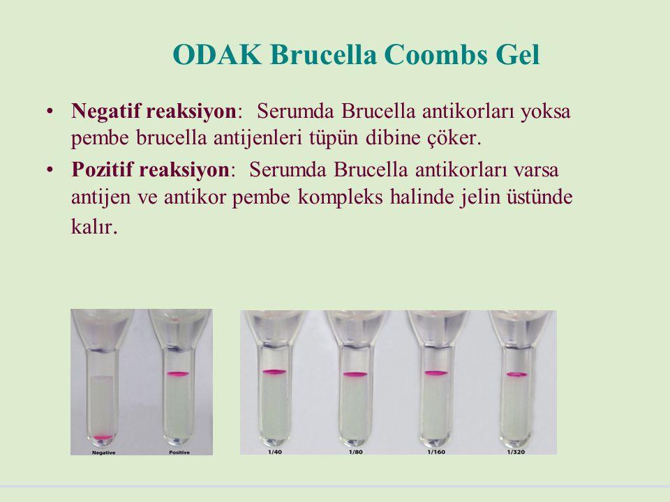 ODAK Brucella Coombs Gel Negatif reaksiyon: Serumda Brucella antikorları yoksa pembe brucella antijenleri tüpün dibine çöker.