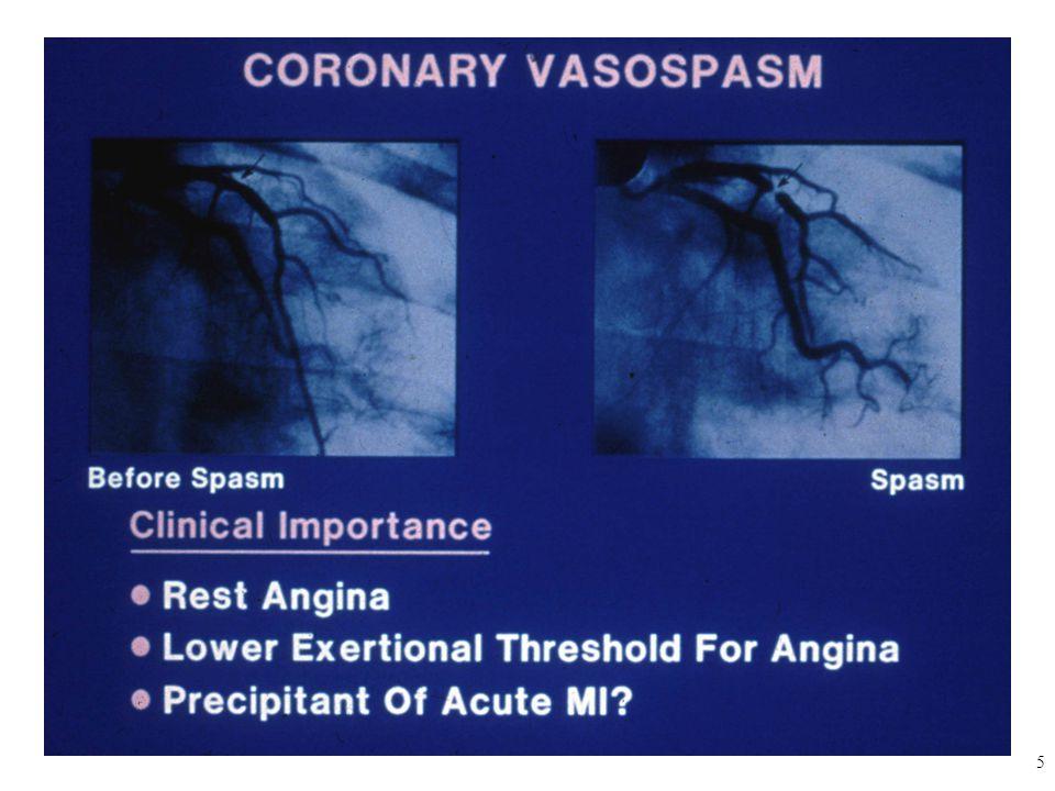 26 Kontrendikasyonlar  Hipertrofik obstrüktif kardiyomiyopati  Kor pulmonale ve diğer nedenlere bağlı hipoksemisi olan hastalar  İntrakraniyal basınç artışına neden olan durumlar