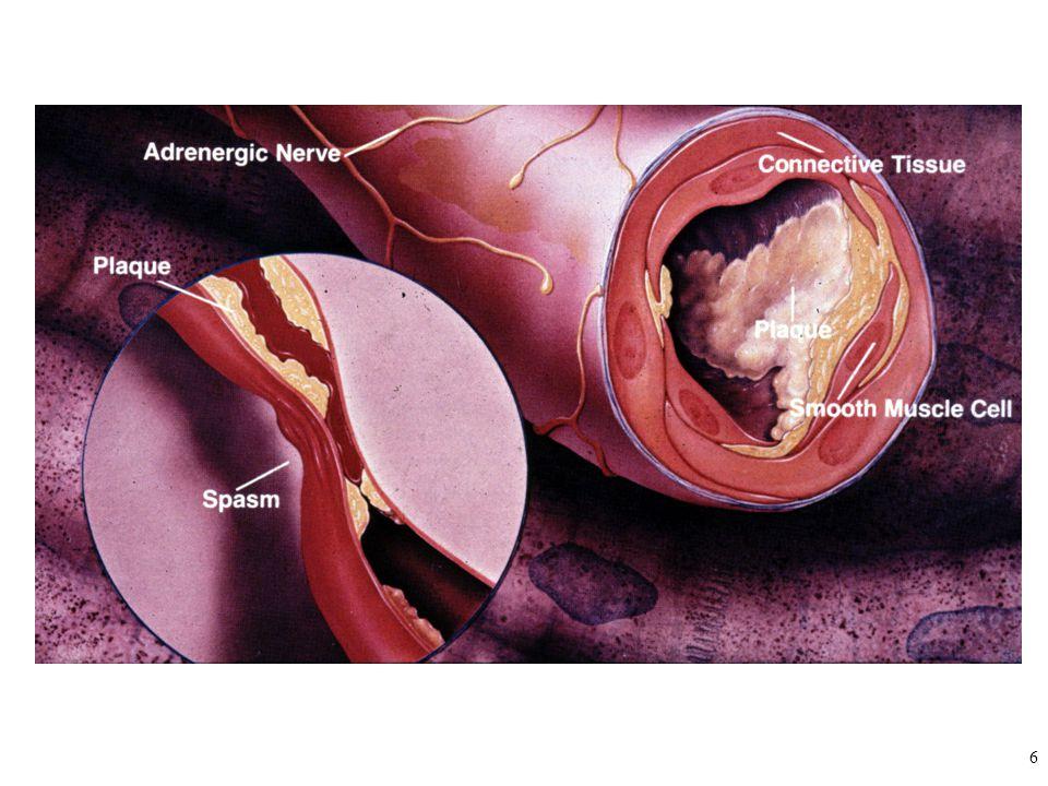 7 ↑= antianginal etki O 2 sunumu/O 2 tüketimi ↓= anginal etki
