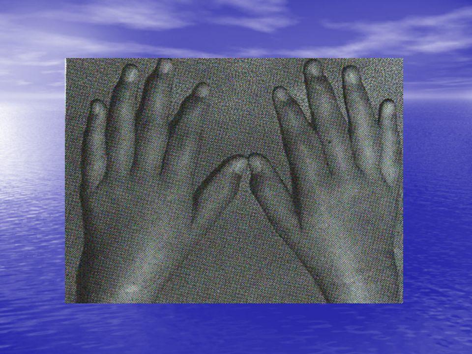 Oligoartiküler JRA Oligoartiküler JRA Tüm JRA'ların % 40-50'si bu gruptadır Tüm JRA'ların % 40-50'si bu gruptadır Eklem tutulumu sıklıkla 4 veya daha az sayıdadır Eklem tutulumu sıklıkla 4 veya daha az sayıdadır Karakteristik olarak büyük eklemler tutulur ve sıklıkla asimetriktir Karakteristik olarak büyük eklemler tutulur ve sıklıkla asimetriktir Tek eklem tutulumu varsa diz sıklıkla etkilenir Tek eklem tutulumu varsa diz sıklıkla etkilenir Gelişmiş ülkelerde en sık görülen JRA alt grubudur.
