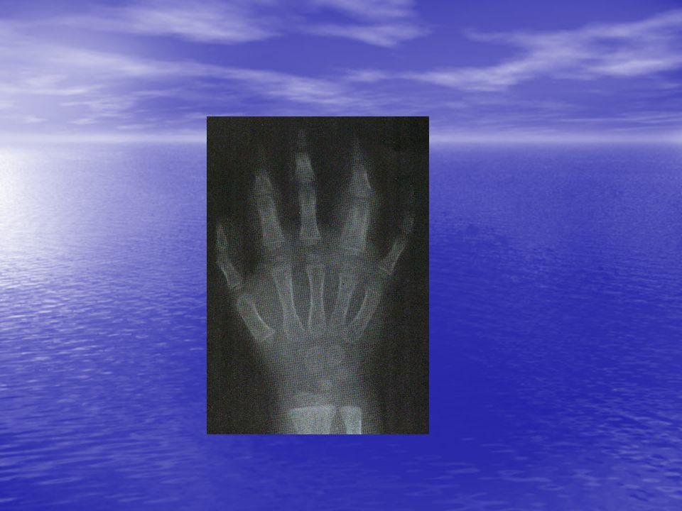 Ayırıcı tanı (1) İnfeksiyon hastalıkları İnfeksiyon hastalıkları Septik artrit Septik artrit Lyme hastalığı Lyme hastalığı Viral artritler Viral artritler Reaktif atritler Reaktif atritler Osteomyelit Osteomyelit Çocukluk çağı maligniteleri Çocukluk çağı maligniteleri Lösemi Lösemi Nöroblastoma Nöroblastoma Diğerleri Diğerleri