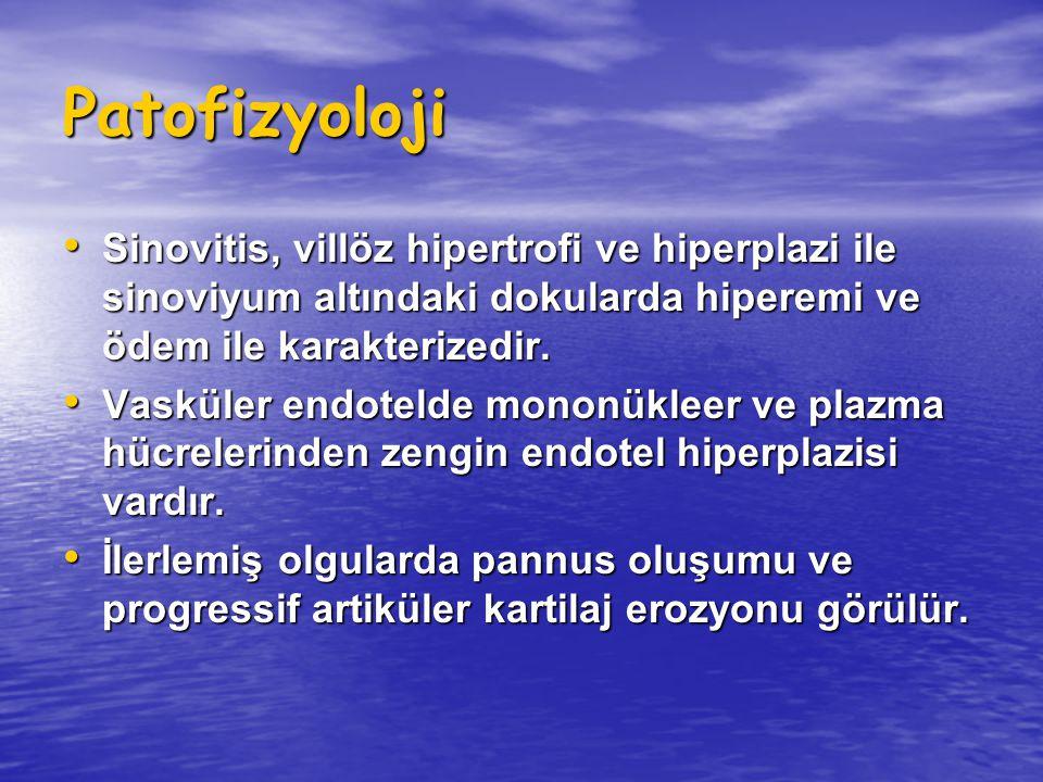 Patofizyoloji Sinovitis, villöz hipertrofi ve hiperplazi ile sinoviyum altındaki dokularda hiperemi ve ödem ile karakterizedir. Sinovitis, villöz hipe