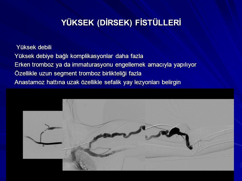 YÜKSEK (DİRSEK) FİSTÜLLERİ Yüksek debili Yüksek debili Yüksek debiye bağlı komplikasyonlar daha fazla Erken tromboz ya da immaturasyonu engellemek ama