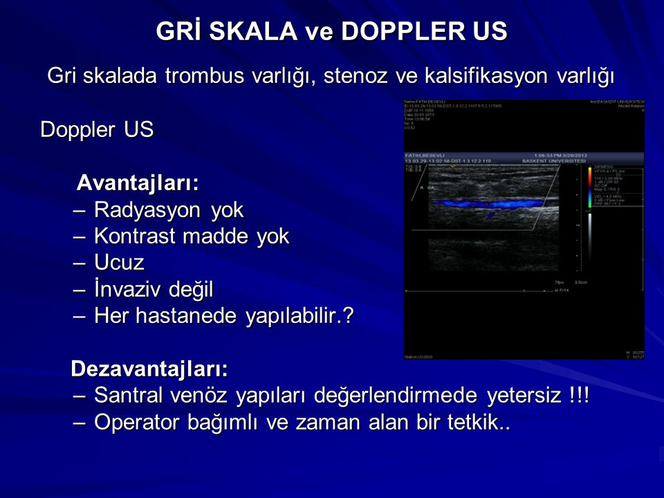 GRİ SKALA ve DOPPLER US Gri skalada trombus varlığı, stenoz ve kalsifikasyon varlığı Gri skalada trombus varlığı, stenoz ve kalsifikasyon varlığı Dopp