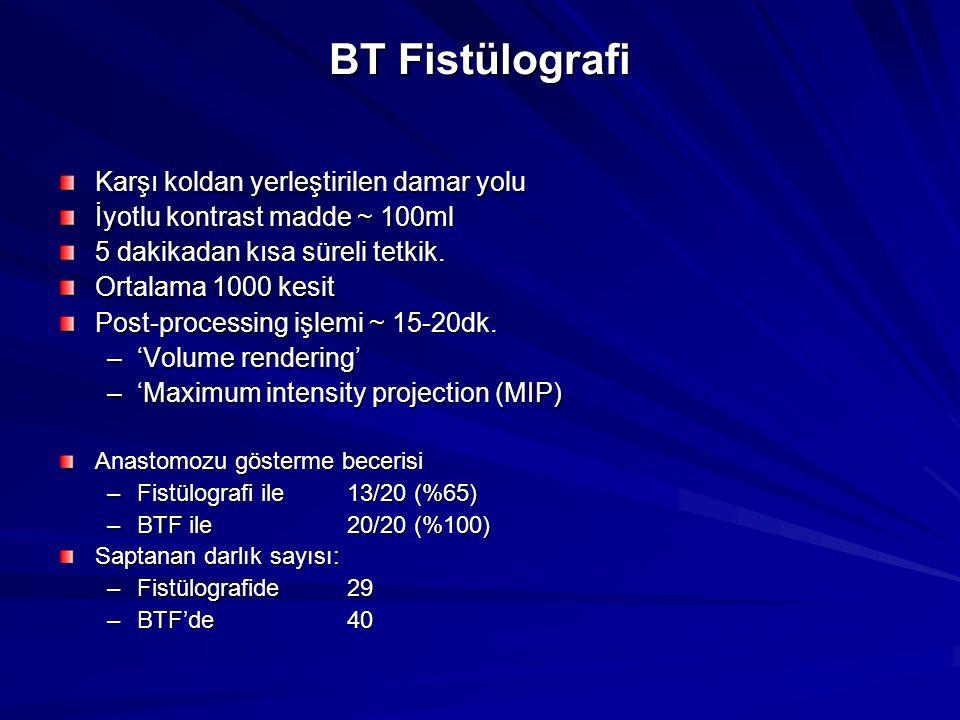 BT Fistülografi Karşı koldan yerleştirilen damar yolu İyotlu kontrast madde ~ 100ml 5 dakikadan kısa süreli tetkik. Ortalama 1000 kesit Post-processin
