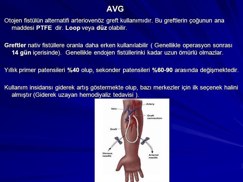AVG AVG Otojen fistülün alternatifi arteriovenöz greft kullanımıdır. Bu greftlerin çoğunun ana maddesi PTFE dir. Loop veya düz olabilir. Otojen fistül
