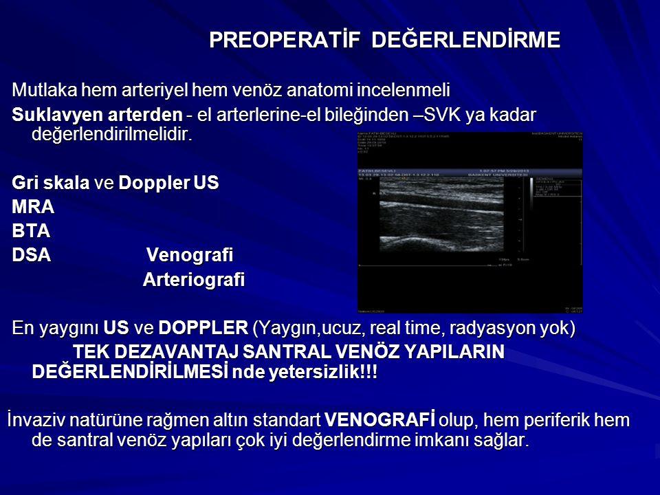 PREOPERATİF DEĞERLENDİRME PREOPERATİF DEĞERLENDİRME Mutlaka hem arteriyel hem venöz anatomi incelenmeli Mutlaka hem arteriyel hem venöz anatomi incele