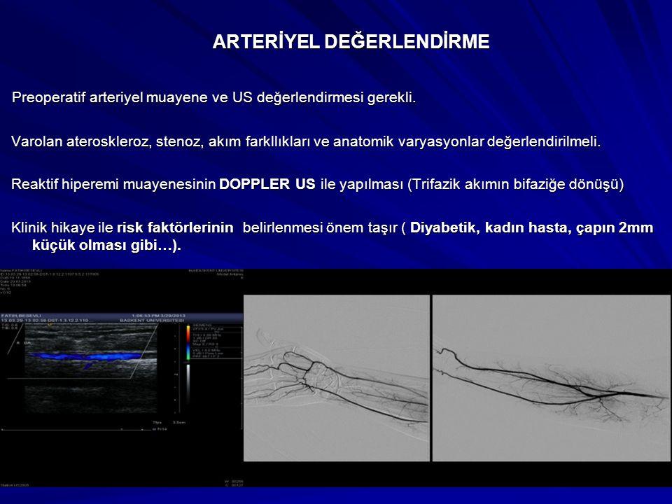 AVF TİPLERİ NATİV AVF NATİV AVF Radial sefalik Brakial sefalik Brakial bazilik (Bazilik ven transpozisyonu ile) Brakial antekubital median ven Femoro safenöz AVG AVG Ön kol (Loop ve düz) Yüksek kol (C şekilli brakial arter ve ven arasında) Aksiller arter ve ven arasında U veya C şeklinde) Aksiller arter ile kontralateral aksiller ven arasında (U veya C şekilli) Femoral arter ile ven arasıda U şekilli