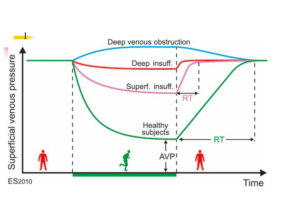 Venöz hipertansiyon Lökosit-endotel etkileşimi Shear stress Kronik inflamasyon Dolaşan lökositlerin endotel adezyonu Lökositler endotel bariyerini geçerek ven duvarı ve kapaklardaki parankime ulaşır Makrofajlardan salınan matriks metalloproteazlar elastin ve kollojeni parçalarlar Bunun sonucu ven duvarı uzar ve kıvrımlı olur Ven kapakları perfore olur, yapısı bozulur Bu değişiklikler makroskobik ve anjioskobik görülebilir