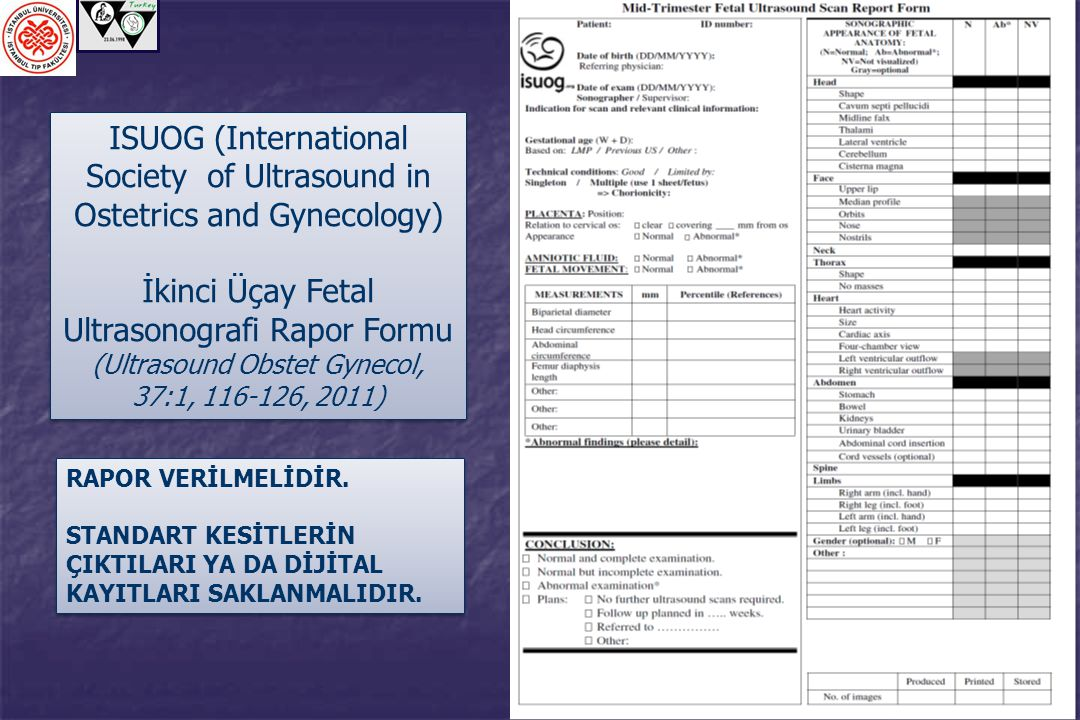 ISUOG (International Society of Ultrasound in Ostetrics and Gynecology) İkinci Üçay Fetal Ultrasonografi Rapor Formu (Ultrasound Obstet Gynecol, 37:1,