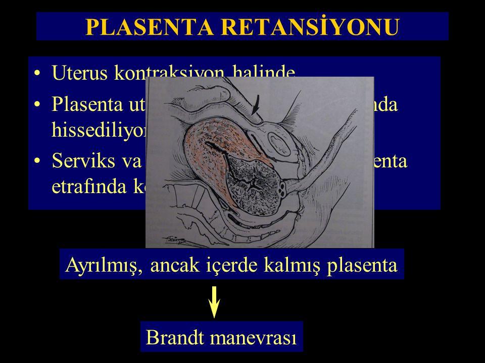 PLASENTA RETANSİYONU Uterus kontraksiyon halinde, Plasenta uterus boşluğunun alt kısmında hissediliyor, Serviks va uterusun alt segmenti plasenta etra