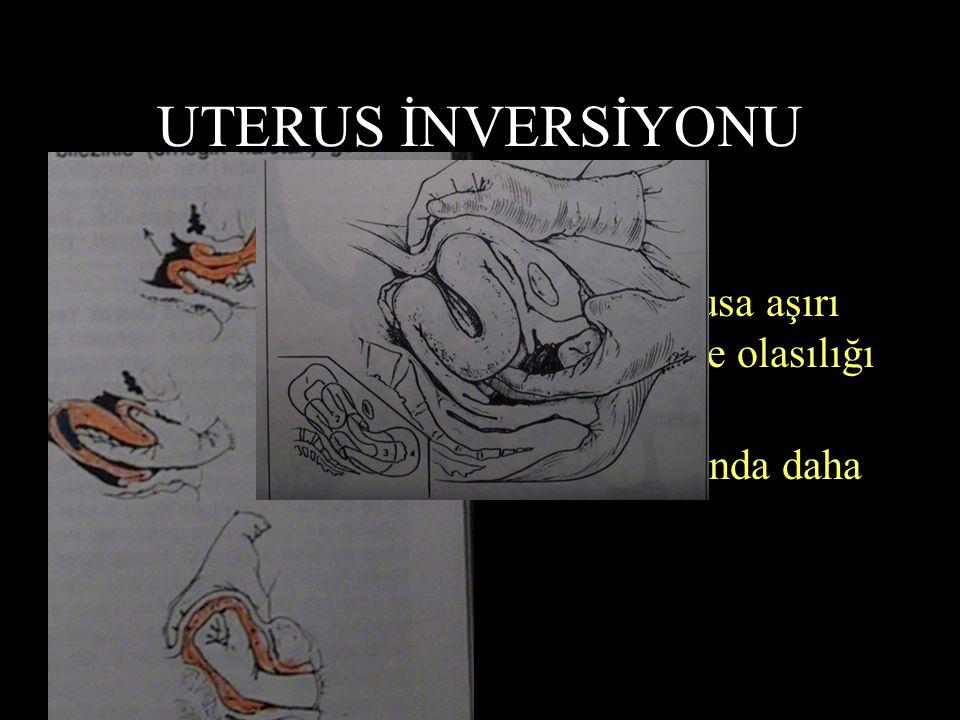 UTERUS İNVERSİYONU 2000 Doğumda bir görülür !? Plasentanın elle çıkartılması, fundusa aşırı baskı uygulanmasına bağlı görülme olasılığı fazladır. Fund