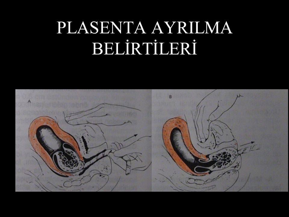 PLASENTA AYRILMA BELİRTİLERİ Vajenden kan boşalır. Uterus yukarı çekilir. Kord aşağı doğru sarkar. Kramp tarzında bir ağrı olur.