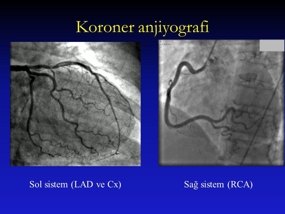Koroner anjiyografi Sol sistem (LAD ve Cx)Sağ sistem (RCA)