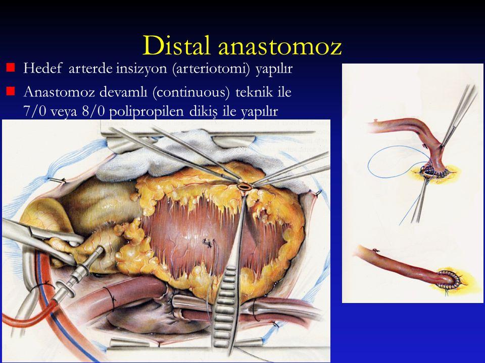 Distal anastomoz Hedef arterde insizyon (arteriotomi) yapılır Anastomoz devamlı (continuous) teknik ile 7/0 veya 8/0 polipropilen dikiş ile yapılır