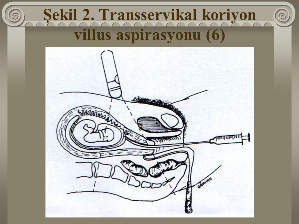 Şekil 2. Transservikal koriyon villus aspirasyonu (6)