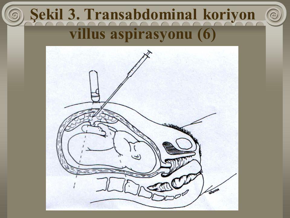 Şekil 3. Transabdominal koriyon villus aspirasyonu (6)
