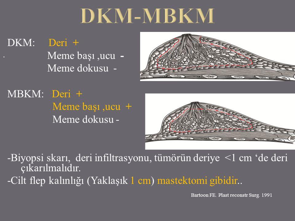 DKM: Deri + Meme başı,ucu - Meme dokusu - MBKM: Deri + Meme başı,ucu + Meme dokusu - -Biyopsi skarı, deri infiltrasyonu, tümörün deriye <1 cm 'de deri