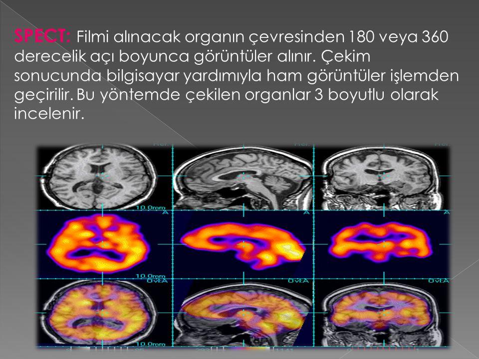 SPECT: Filmi alınacak organın çevresinden 180 veya 360 derecelik açı boyunca görüntüler alınır. Çekim sonucunda bilgisayar yardımıyla ham görüntüler i