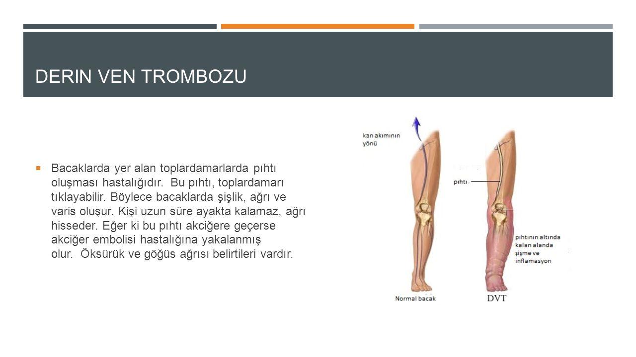 DERIN VEN TROMBOZU  Bacaklarda yer alan toplardamarlarda pıhtı oluşması hastalığıdır. Bu pıhtı, toplardamarı tıklayabilir. Böylece bacaklarda şişlik,