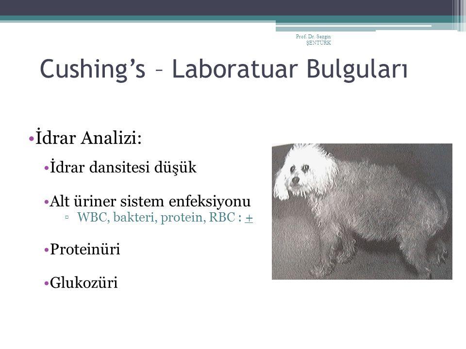 Prof. Dr. Sezgin ŞENTÜRK Cushing's – Laboratuar Bulguları İdrar Analizi: İdrar dansitesi düşük Alt üriner sistem enfeksiyonu ▫WBC, bakteri, protein, R