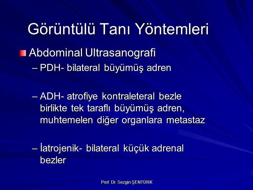 Prof. Dr. Sezgin ŞENTÜRK Görüntülü Tanı Yöntemleri Abdominal Ultrasanografi –PDH- bilateral büyümüş adren –ADH- atrofiye kontraleteral bezle birlikte