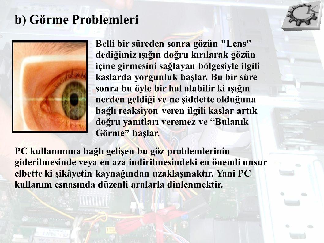b) Görme Problemleri Belli bir süreden sonra gözün