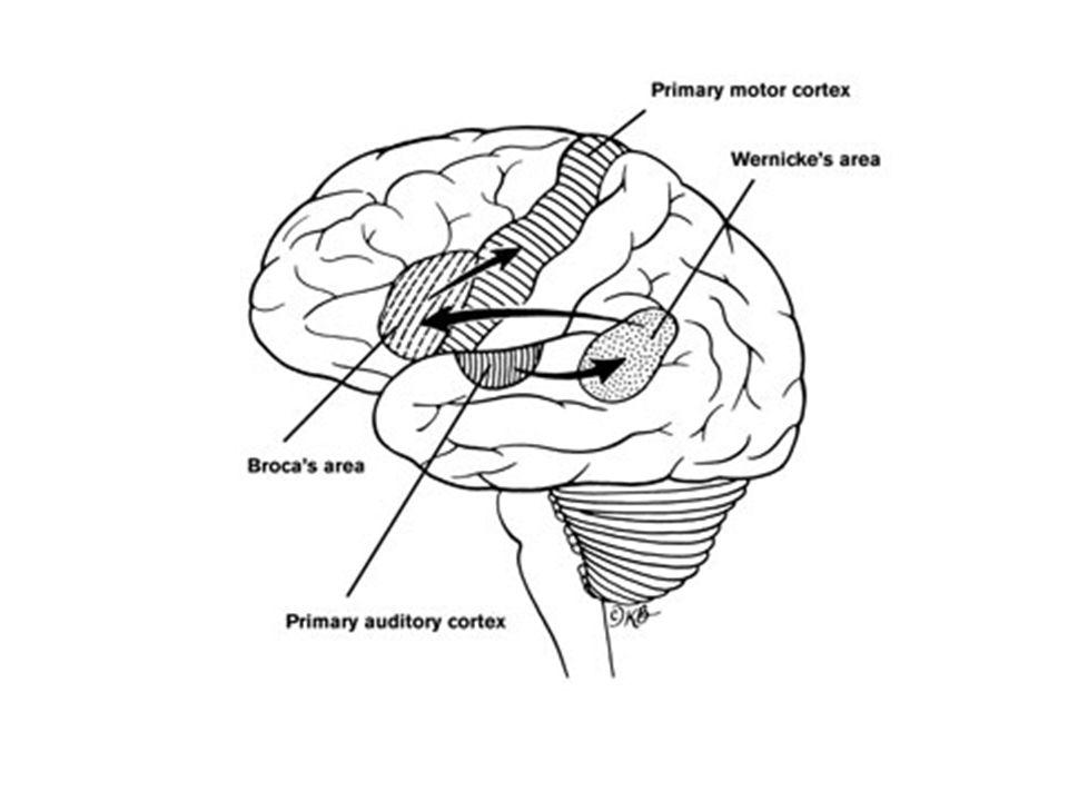 AFAZİ BROKA TİPİ Akıcı değil İyi anlar İfadede sorun Motor Agramatik (doğru gramatik dizimi olmayan) WERNİCKE TİPİ Anlama bozuktur Algılamada sorun Duyusal Neoloji (yeni terim oluşturma)/Jargon(ortak dil)