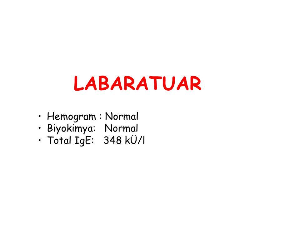 LABARATUAR Hemogram : Normal Biyokimya: Normal Total IgE: 348 kÜ/l