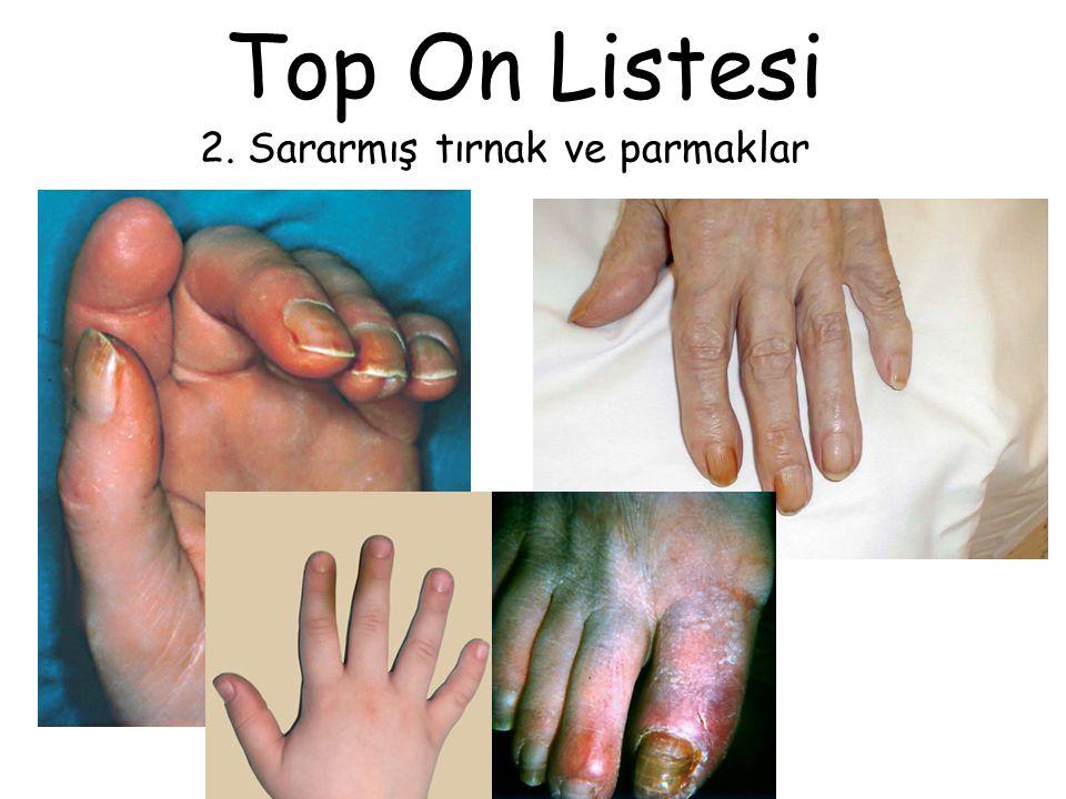 Top On Listesi 2. Sararmış tırnak ve parmaklar
