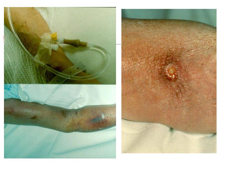 Periferik santral venöz kateterler Antekubital bölgeye takılır Mekanik komplikasyon, flebit, enfeksiyon  Kalış süresi .